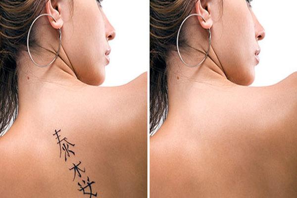 Удаление татуировок татуажа неодимовым лазером